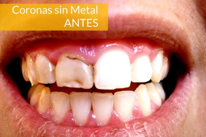 Consultorio Medico Odontologico Dra Odontologa Silvina Crisi  Coronas sin Metal
