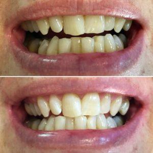 Consultorio Medico Odontologico Dra Odontologa Silvina Crisi BLANQUEAMIENTO DENTAL
