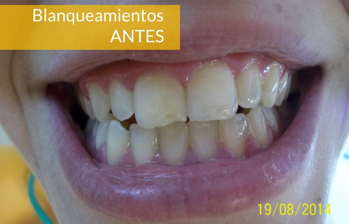 Consultorio Medico Odontologico Dra Odontologa Silvina Crisi  Blanqueamientos