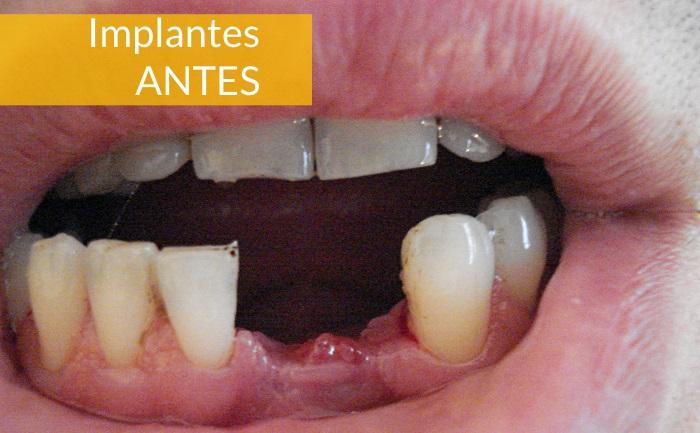 Consultorio Medico Odontologico Dra Odontologa Silvina Crisi Implantes