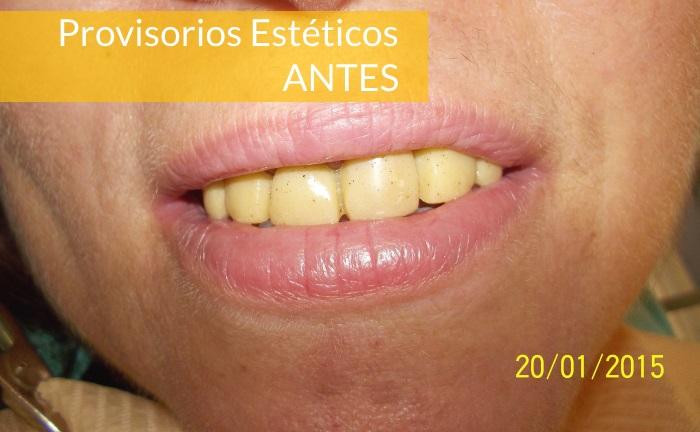 Consultorio Medico Odontologico Dra Odontologa Silvina Crisi  Provisorios Esteticos