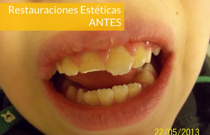 Consultorio Medico Odontologico Dra Odontologa Silvina Crisi  Restauraciones Esteticas