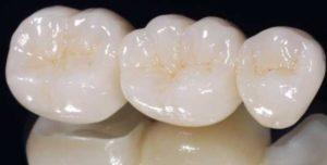Consultorio Medico Odontologico Dra Odontologa Silvina Crisi Coronas de Zirconio Carillas Dentales